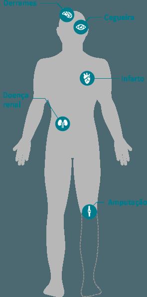 diabetes tipo 2 obesidad causa tipo